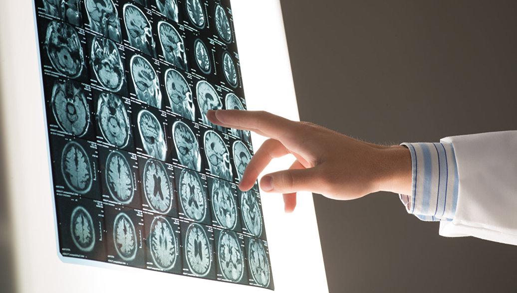 Ученые выяснили, какой фактор повышает риск развития болезни Паркинсона