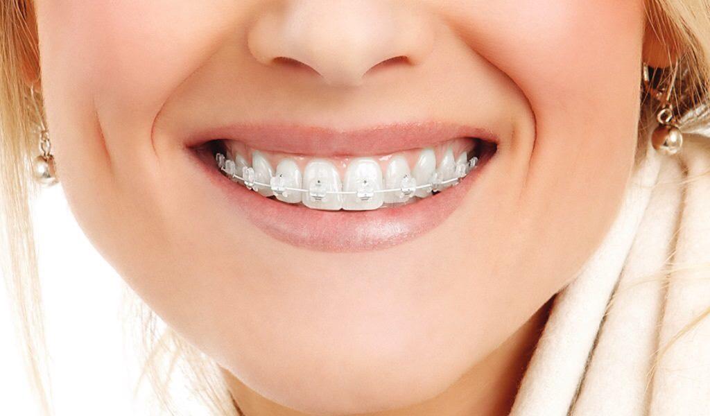 Сапфировые брекеты – достойное зубное украшение