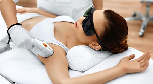 Процедура лазерной эпиляции подмышек