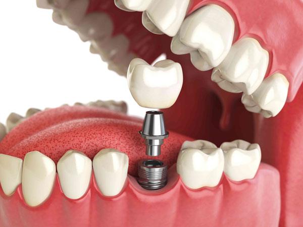 Протезирование и лечение зубов, эстетическая стоматология