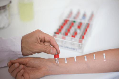 Анализы на аллергены: показания к назначению, особенности проведения