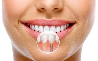 Имплантация — способ сохранить зубы